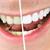 Get Healthier, Whiter Teeth -- the Safe Way